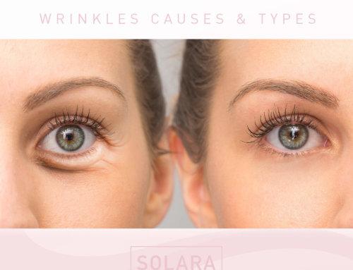 Let's Talk Wrinkles – Causes & Types