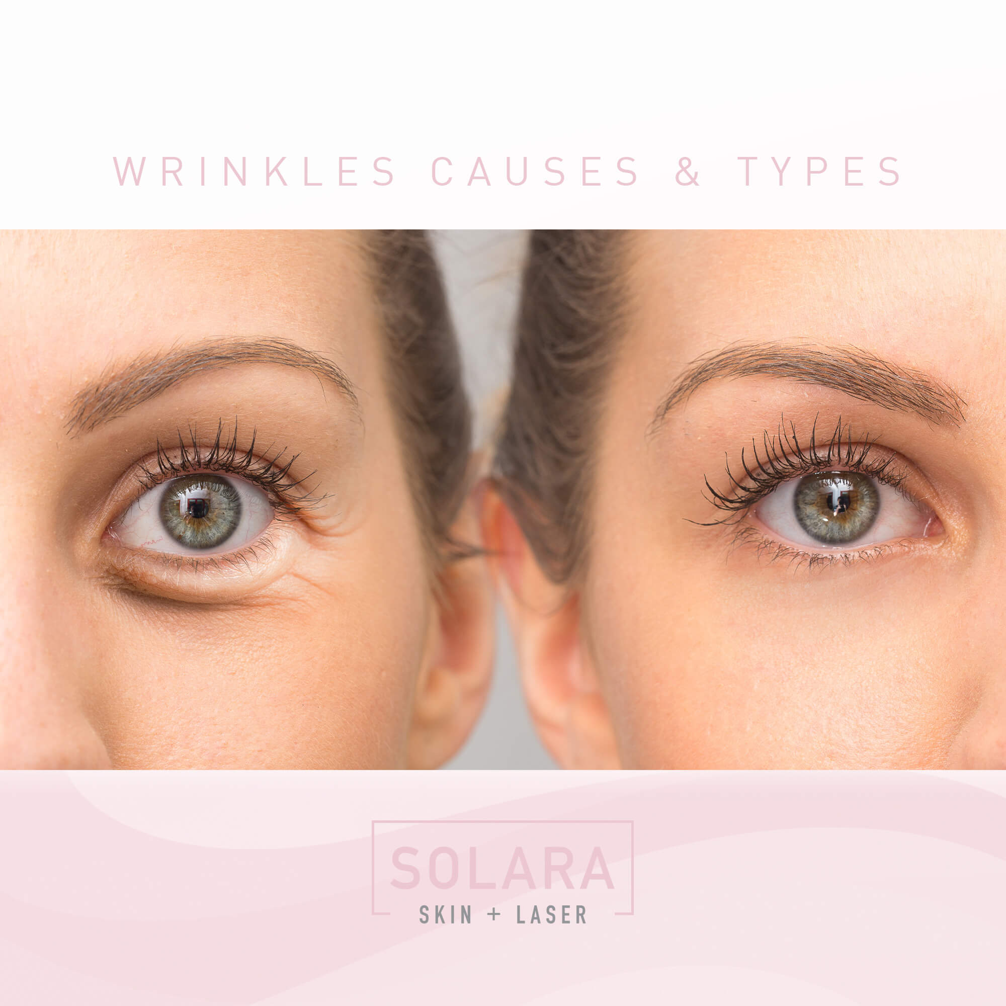 Wrinkles Causes and Types