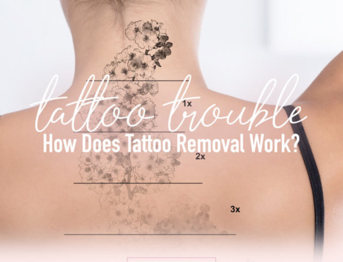 Tattoo Troubles: How Does Tattoo Removal Work?