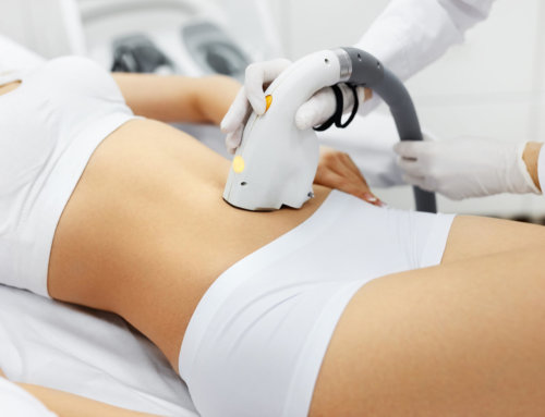 Does Laser Hair Removal Hurt and Other Important Questions