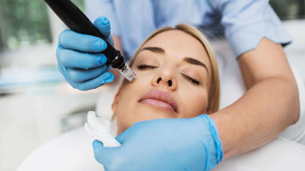 microneedling-and-prp-in-Anhchorage-Alaska